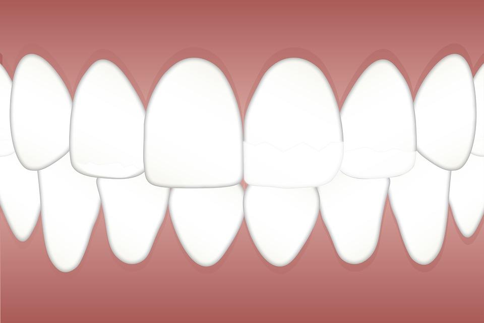 tandblekning-rabattkod/